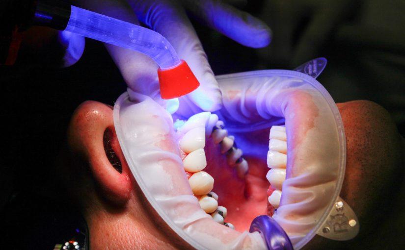 Zła sposób żywienia się to większe niedobory w zębach natomiast również ich utratę